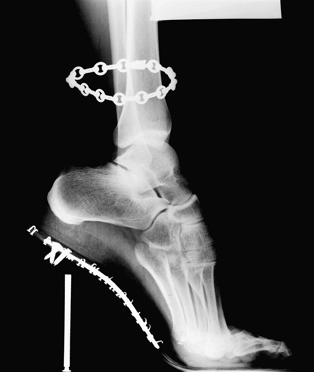 X Ray Van Cleef Arpels French Vogue 1995 © Helmut Newton Estate